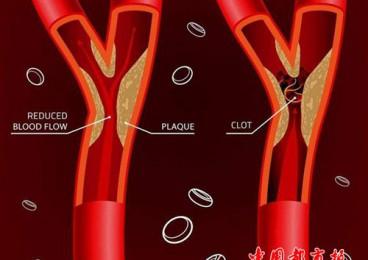 4个方法,给你的血管洗洗澡